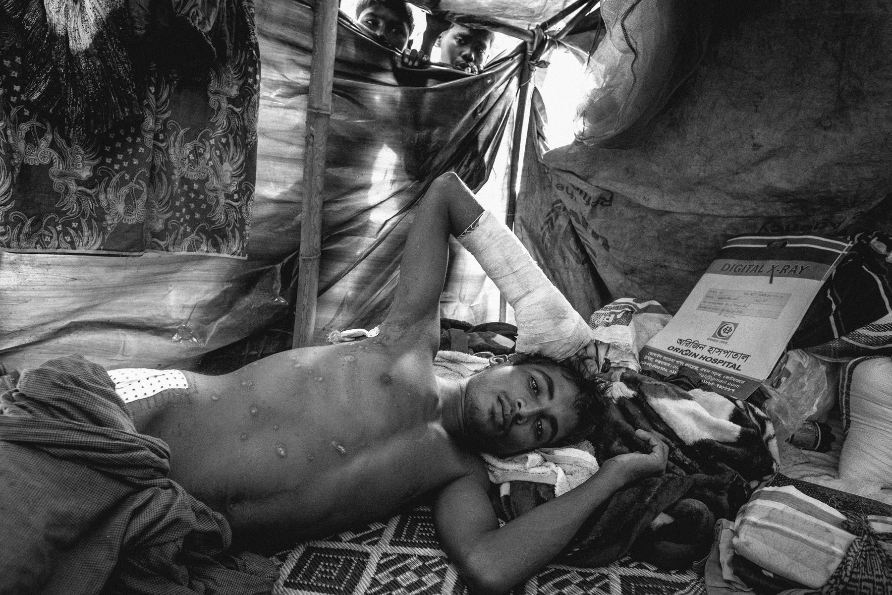 21 year old Shobir Ahamed was shot and hit by a mortar when his village in Buthidaung was attacked by the Myanmar military.  Despite his injuries, he was able to make it to a makeshift camp in Thaing Khali, Bangladesh where an MSF clinic provided him basic medical assistance.