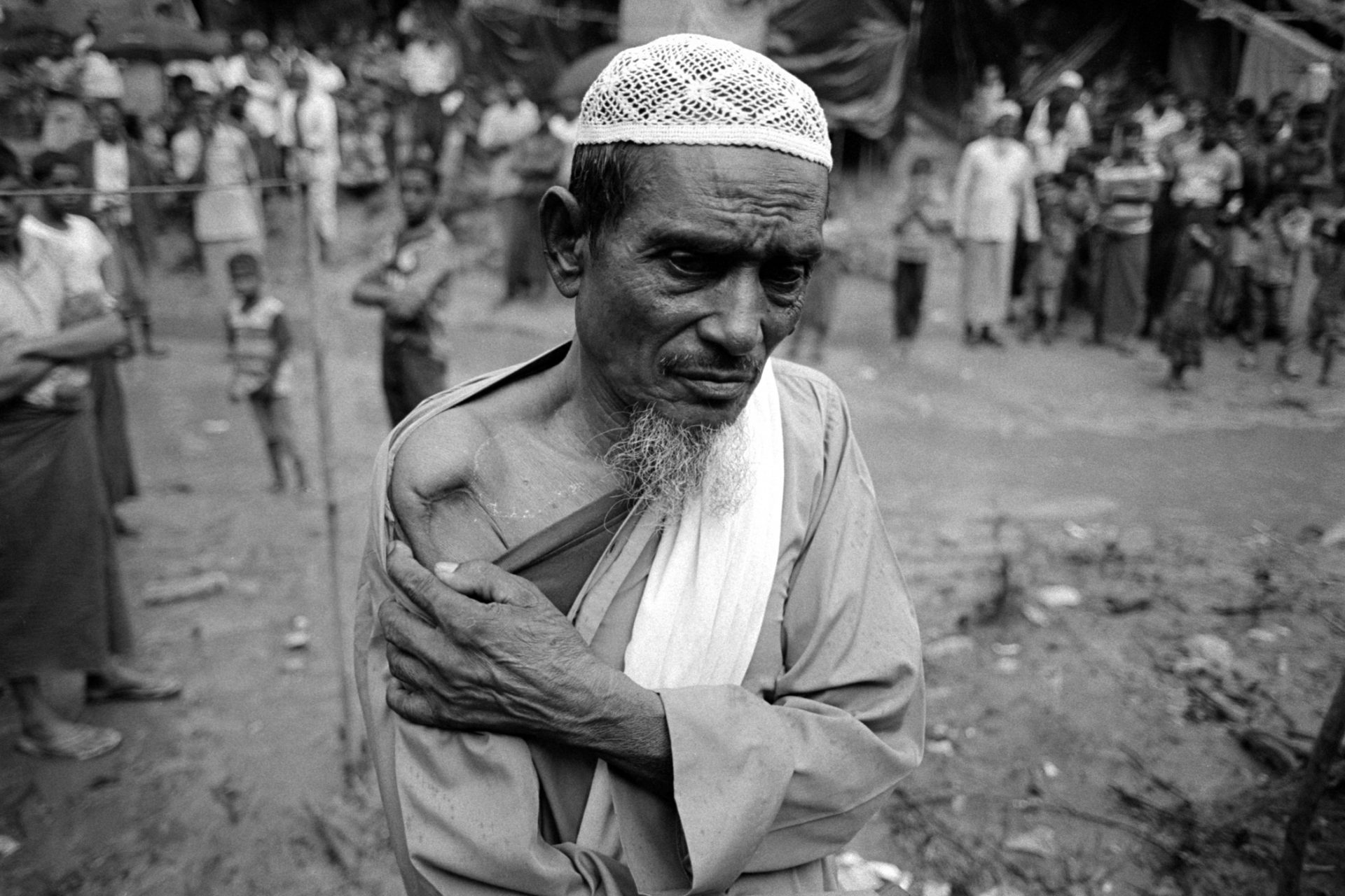 70 year old Jolar Ahmed from Maungdaw shows his scars from where he was shot in the shoulder by Myanmar security forces.  Zero line border camp, Naikhongchari.