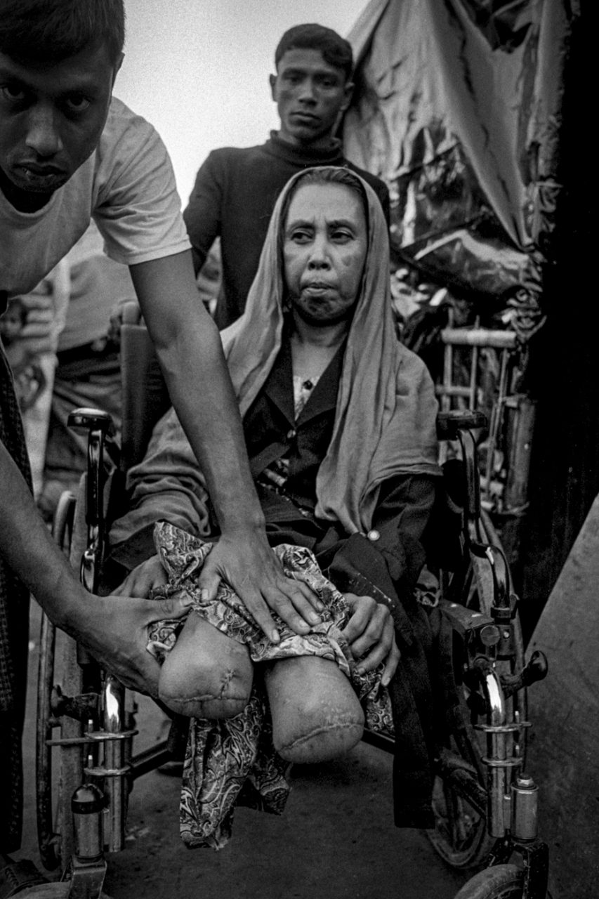 Sabakun Naher sits in a wheel chair at No Man's Land camp in between the Myanmar border fence and Bangladesh at Tumbro.  Maungdaw, Myanmar.  Sabakun stepped on a land mine here on September 5th while running for her life trying to get into Bangladesh.  Both of her legs were blown off in the explosion and she was taken to a hospital in Chittagong for treatment.  After recovering from her surgery she was taken back to live in this narrow strip of land isolated from the main refugee camps which house hundreds of thousands of other Rohingya refugees.